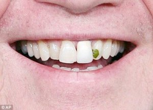 Spinach stuck in teeth